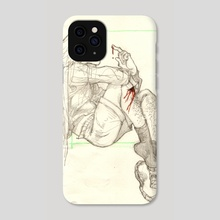 scraped knee - Phone Case by soy
